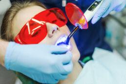 Dental-Laser © fotolia / romanets_v