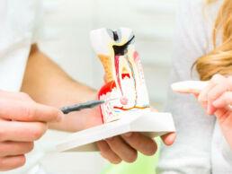 Halber Zahn in Grossformat zur Veranschaulichung einer Wurzelbehandlung
