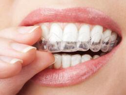 In Grossaufnahme Mund einer Frau, die eine Zahnschiene einsetzt