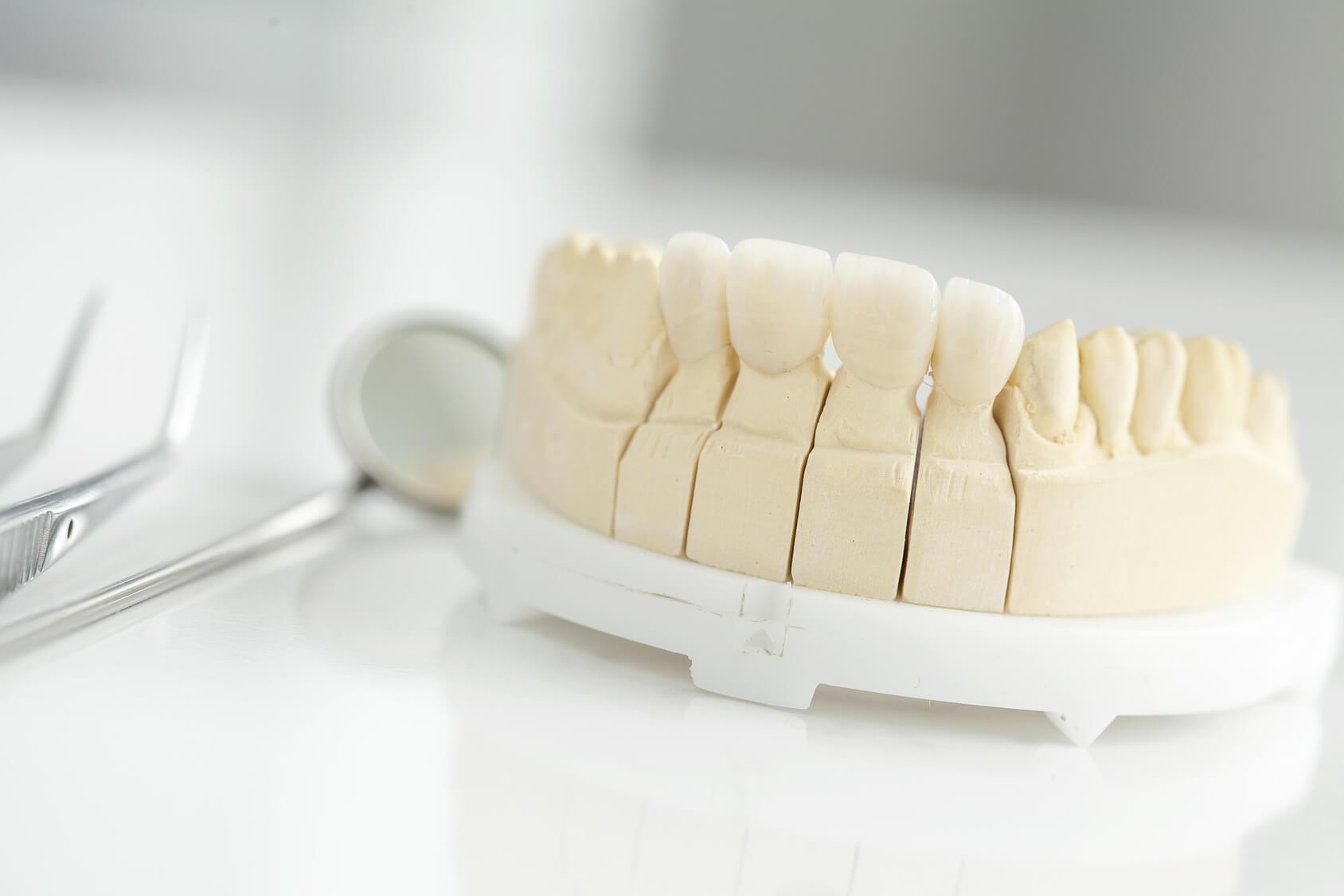 Auf dem Bild ist ein Unterkiefer aus Gips und verschiedene Werkzeuge eines Zahnarztes, um Zahnersatz herzustellen
