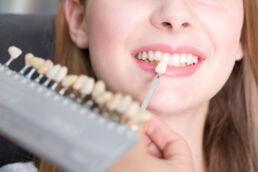 Zu sehen ist as Gesicht einer jungen Frau in Grossaufnahme ab Nase abwärts, Zähne sind sichtbar und eine Hand hält eine Reihe von Zahnmustern mit Zahnverfärbungen in der einen Hand, mit der anderen wird ein Zahnmuster an die Zähne der Frau gehalten