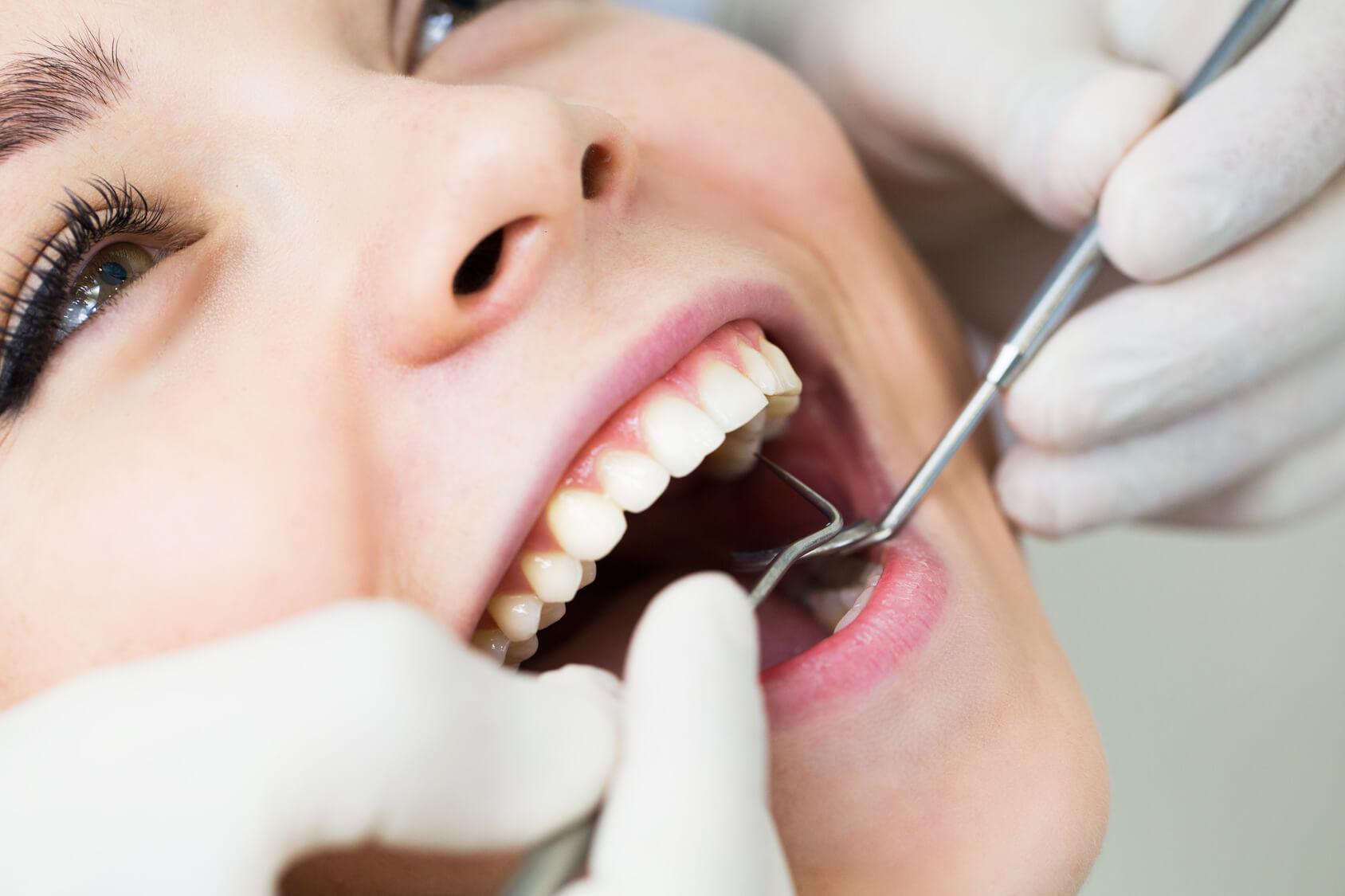 Gegen zahnfleisch drückt weisheitszahn Zahnfleischentzündung am