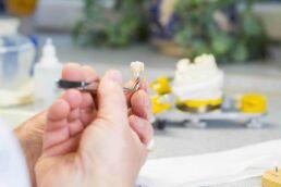 Hand hält eine Pinzette mit einem billigen Zahnimplantat fest, der Hintergrung ist verschwommen