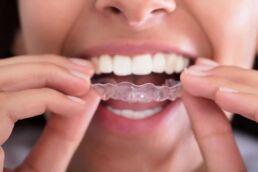 Frau führt eine Zahnschiene gegen Zähneknirschen in den Mund