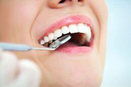 Frau mit geöffnetem Mund und einem eingeführten Mundspiegel bekommt die Diagnose Parodontitis