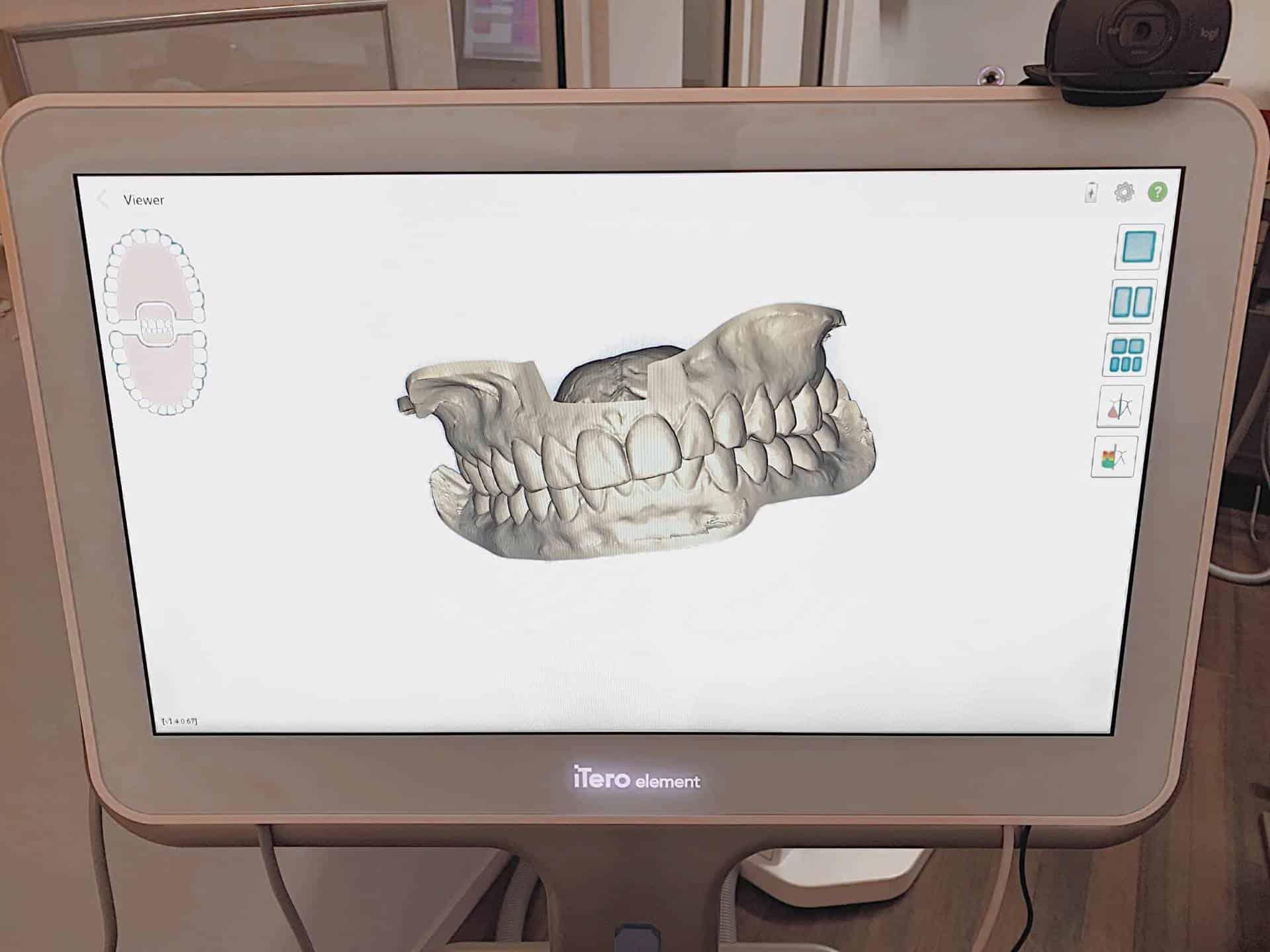 Yes We Scan! Wie der Intraoralscanner den Zahnarztbesuch jetzt noch komfortabler macht