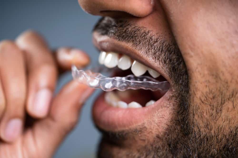 Ein Mann legt sich eine Zahnschiene in den Mund, die zur Zahnkorrektur dient