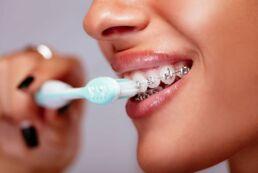 Frau mit fester Zahnspange, die sich die Zähne putzt und auf Zahnhygiene achtet.