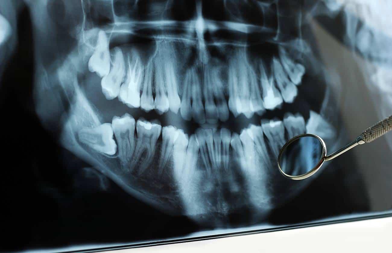 Röntgenbild eines Kiefers, auf dem man schiefliegende Weisheitszähne sieht